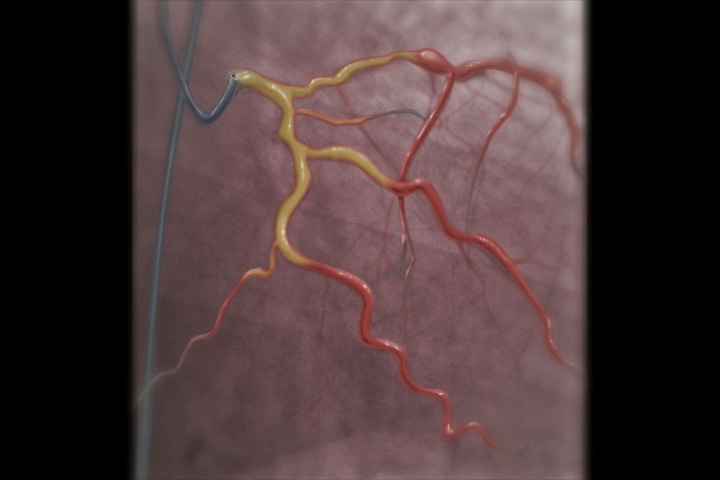 What is an angiogram?