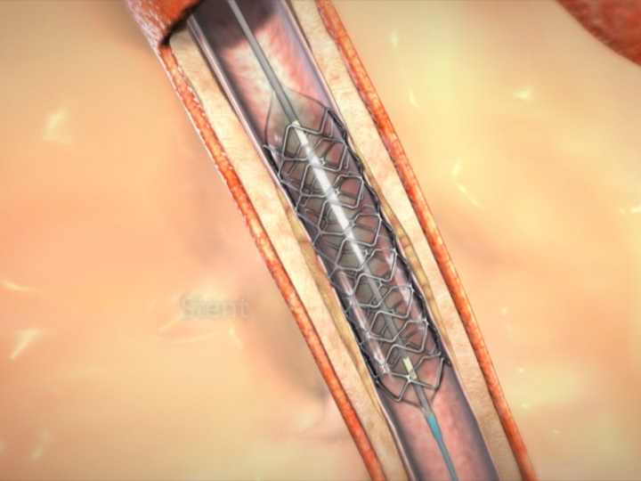 What is angioplasty?