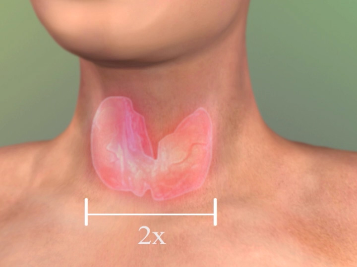 Enlarged Thyroid