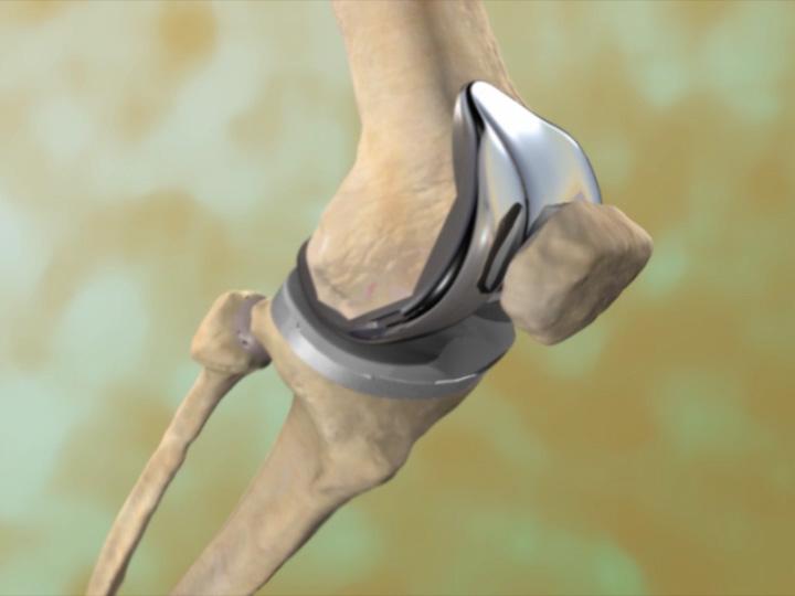Patellar Prosthesis