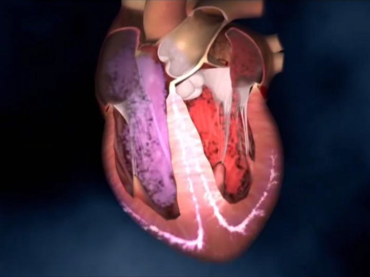 What is ventricular fibrillation?