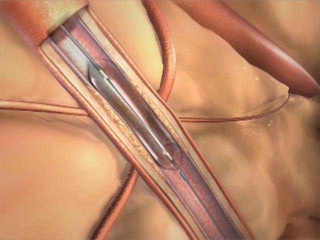 What is carotid artery disease?
