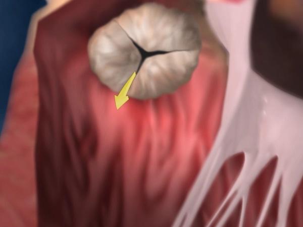 What is aortic regurgitation?