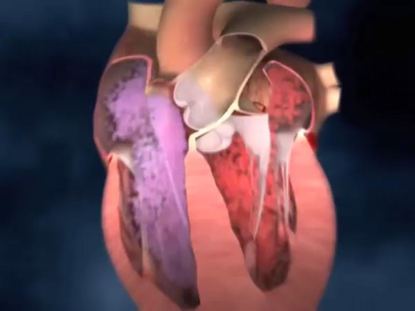 What is aortic valve stenosis?