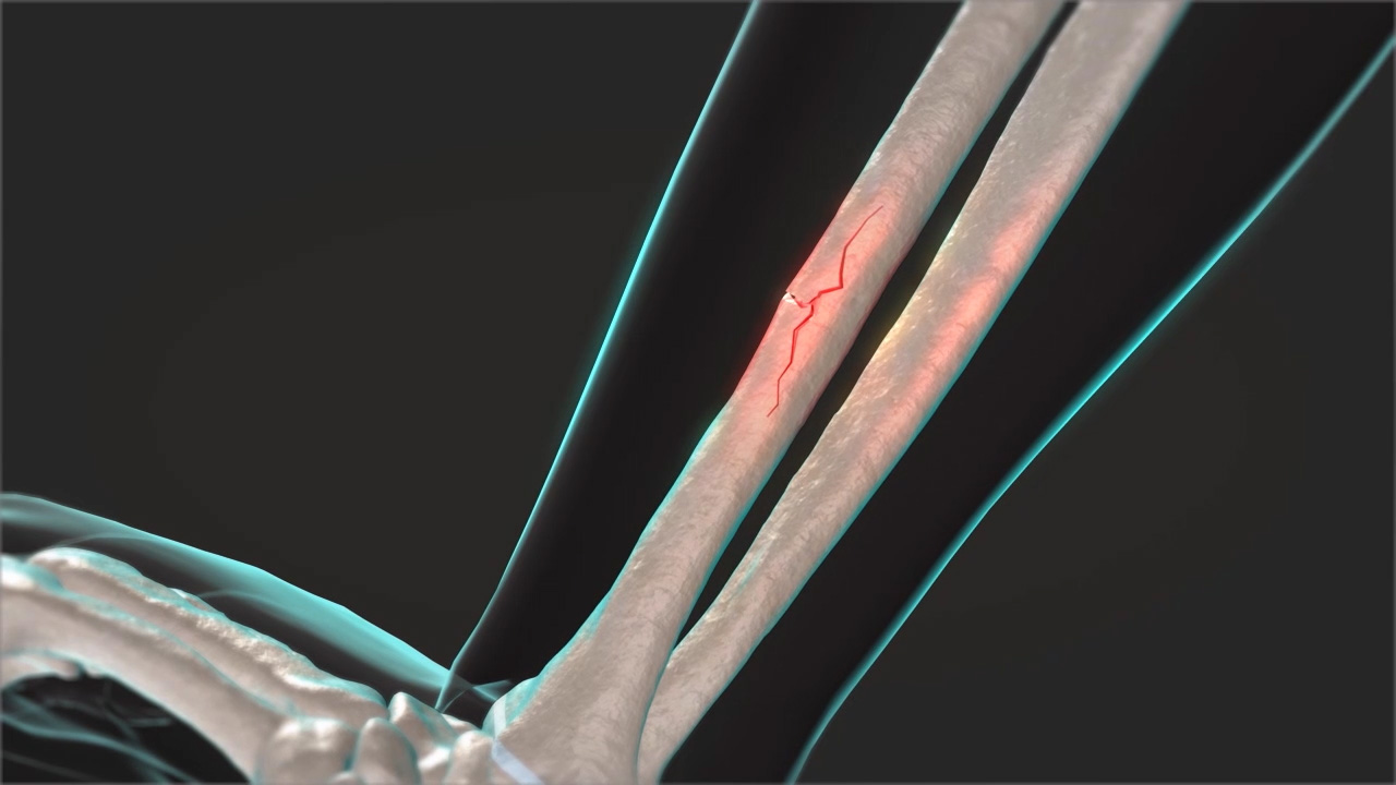Forearm Fracture - Pediatric