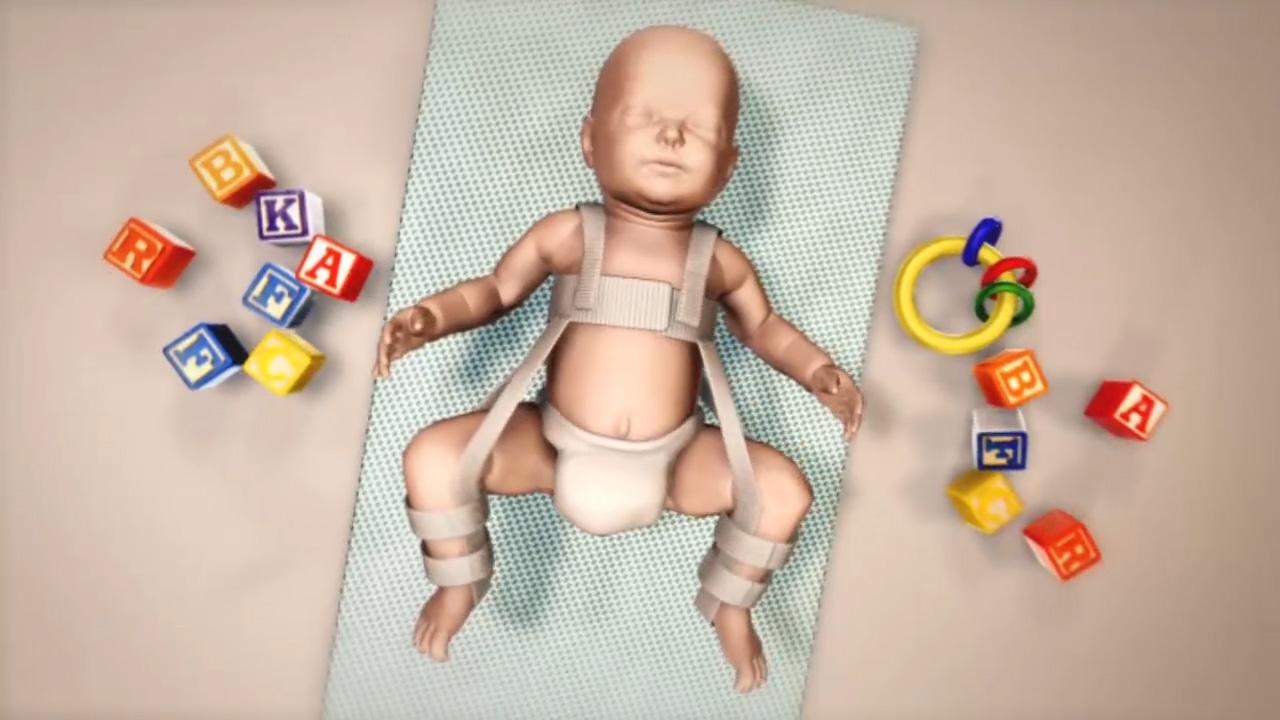 Hip Dysplasia - Pediatric