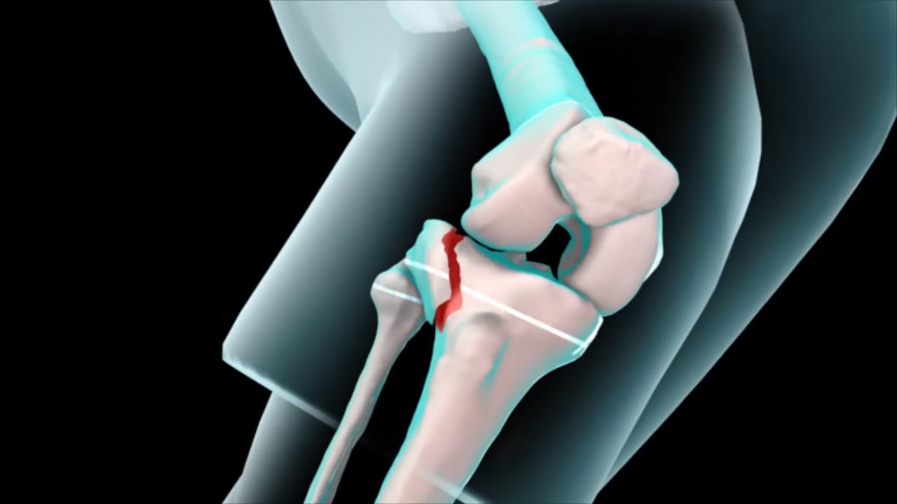 Knee Fracture - Pediatric
