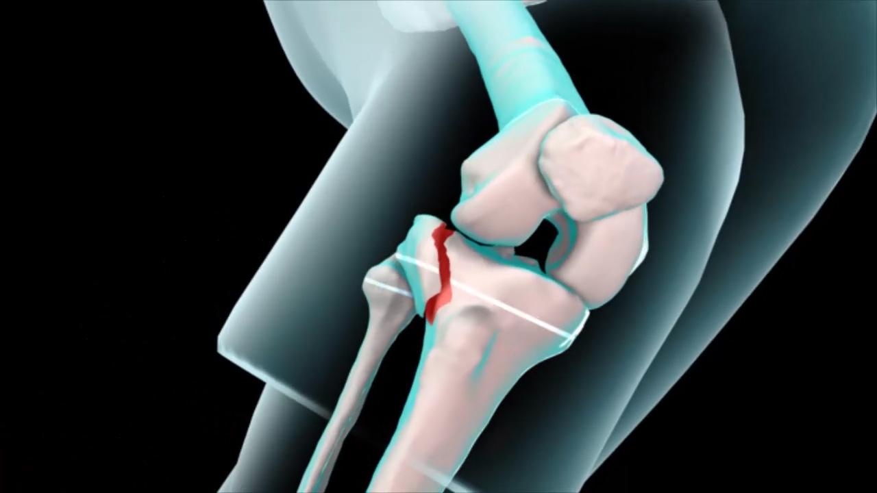 Knee Fracture - Pediatric