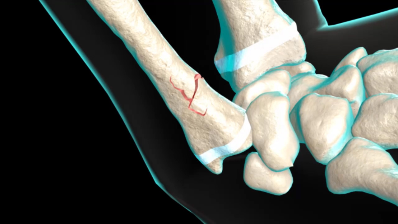 Wrist Fracture - Pediatric