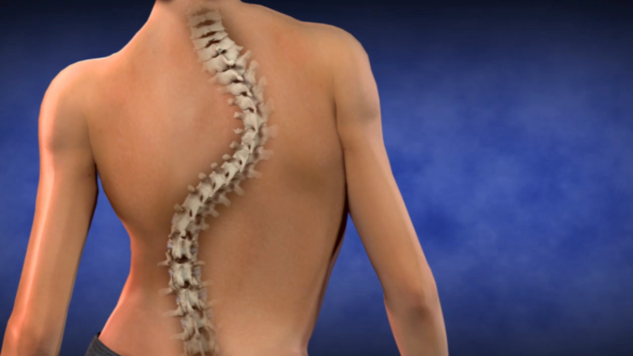 Scoliosis - Pediatric