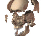 Skeletal System: Exploded view of the Skull