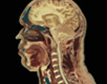 Digestive System: The Mouth & Throat - Sagittal Section of the Head & Neck, the Right Half Seen from