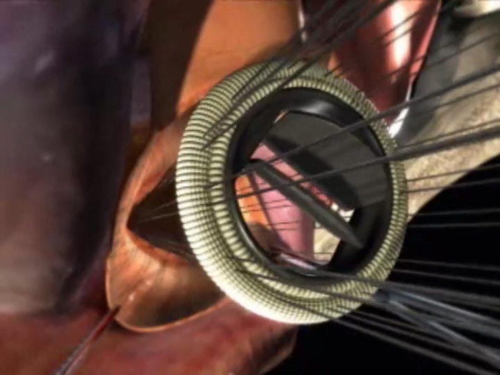 How is an aortic valve replaced?