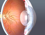 Presbyopia with iris constriction