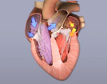 What is left ventricular hypertrophy?