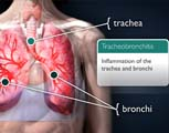 Tracheobronchitis