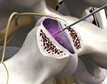 Lumbar injection facet block