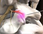 Lumbar injection medial branch