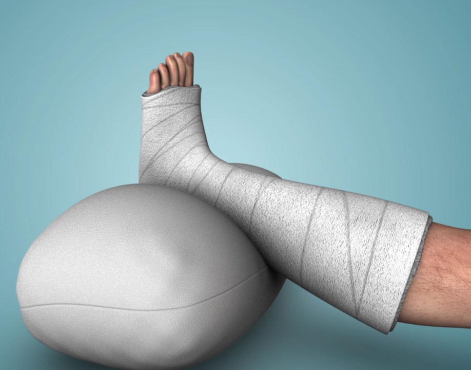 Achilles Tendon: Repair for Complete Rupture
