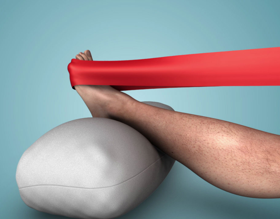Achilles Tendon: Recovery from Partial Tear