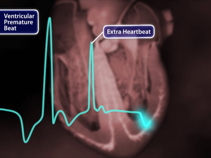 What is a ventricular premature beat?