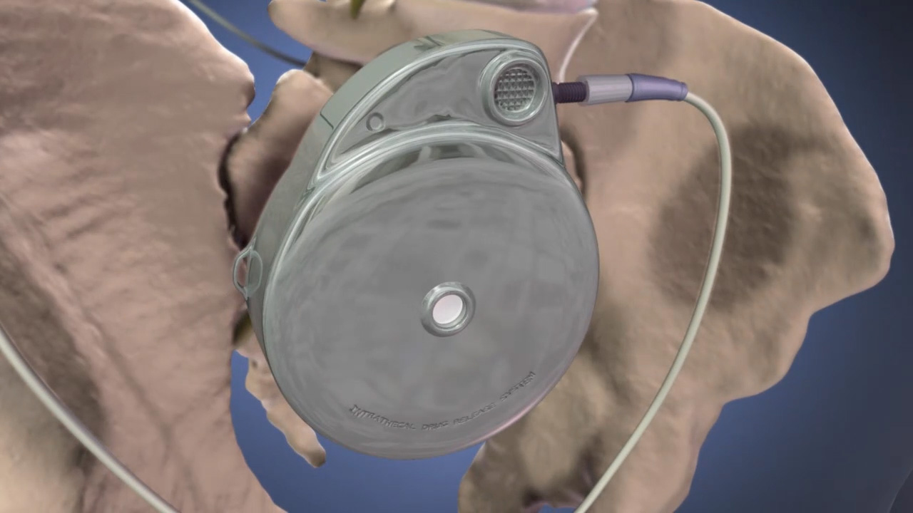 Intrathecal Pump