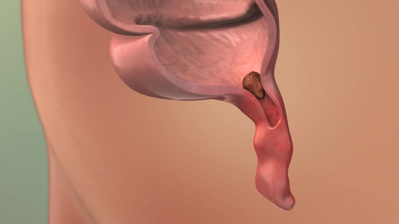 Appendicitis - Pediatric