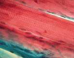 Muscular System: Skeletal Muscle Fibers, Microscopic View