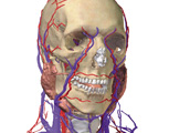 The Head & Neck: Head & Neck with Muscles Removed Showing the Major Blood Vessels, Anterolateral Vie