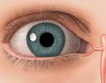 Eye: Anterior View