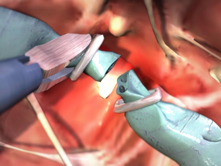 Laparoscopic Cholecystectomy Complication