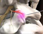 Lumbar injection medial branch