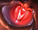 What causes laryngitis?