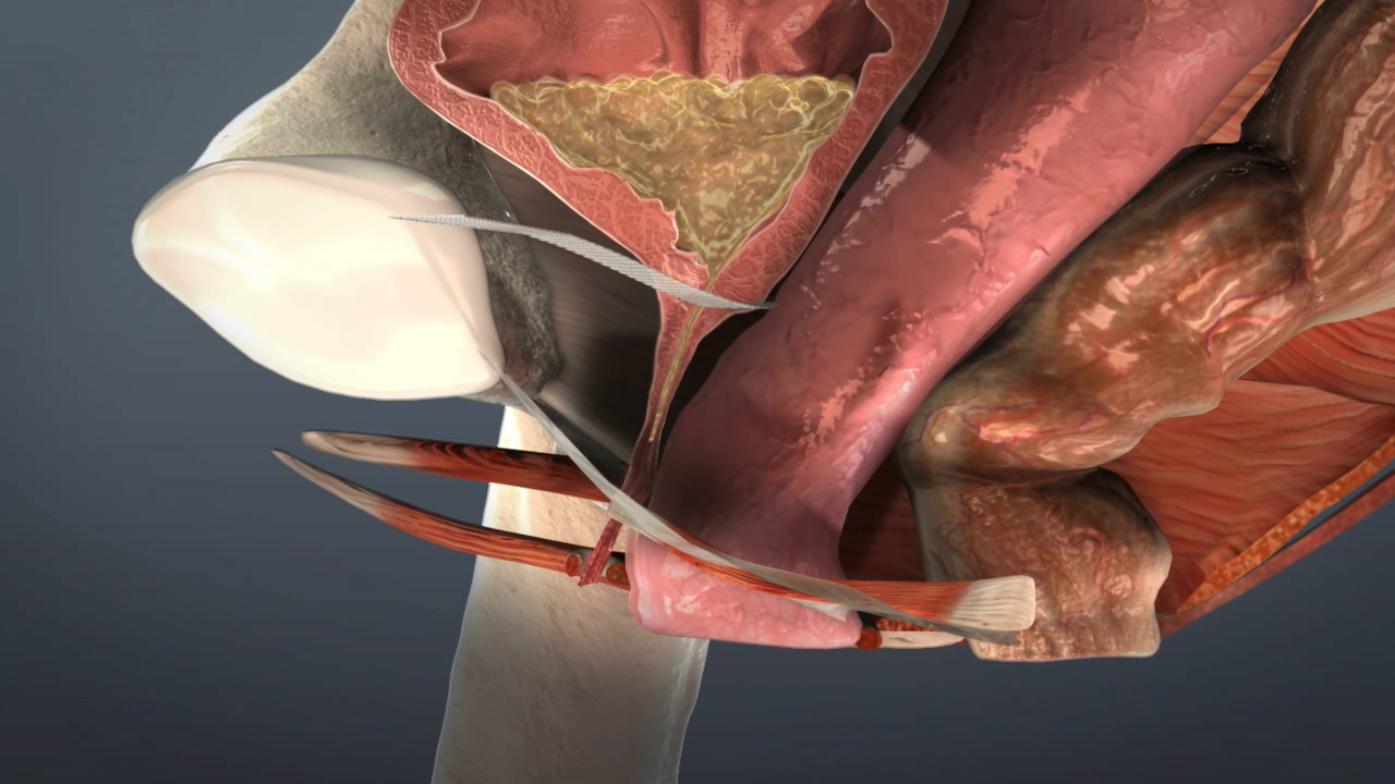 Urinary Stress Incontinence