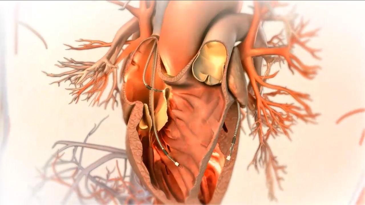 Biventricular ICD