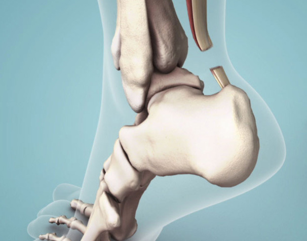Achilles Tendon: Complete Rupture