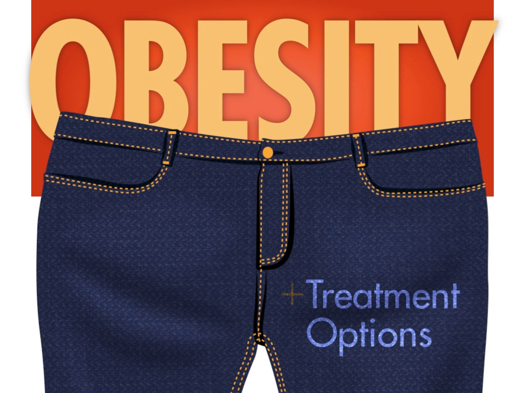 Obesity - Treatment Options