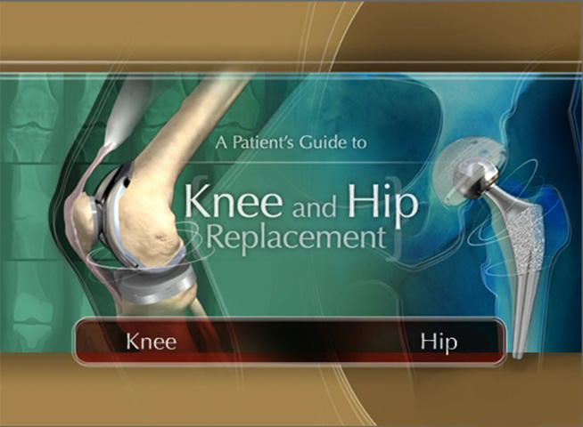 St Jude Knee Replacement